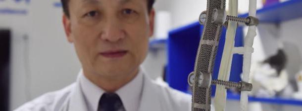 A impressão 3D ajuda a substituir 19 cm de vértebras de um paciente chinês