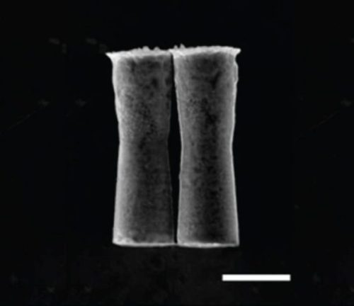 "A linha branca representa 5 micrômetros. Fonte: ""Artificial Micromotors in the Mouse's Stomach"" by Wei Gao et al., ACS Nano, 2014"